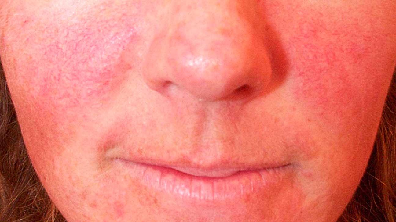 علاج احمرار الوجه