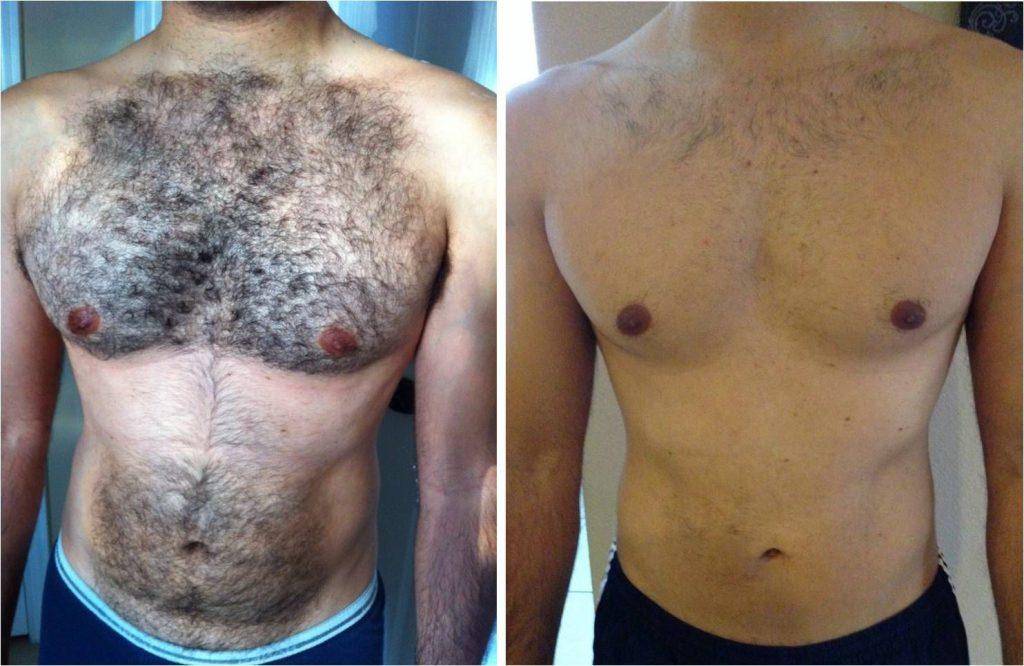 قبل و بعد شعر الصدر